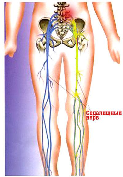 Седалищного нерв фото где находится